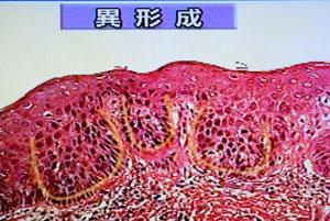 癌の組織(異形成)
