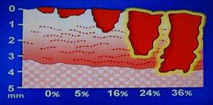 舌癌の深さと進行度の関係